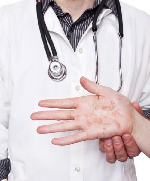 eczema in hand photo