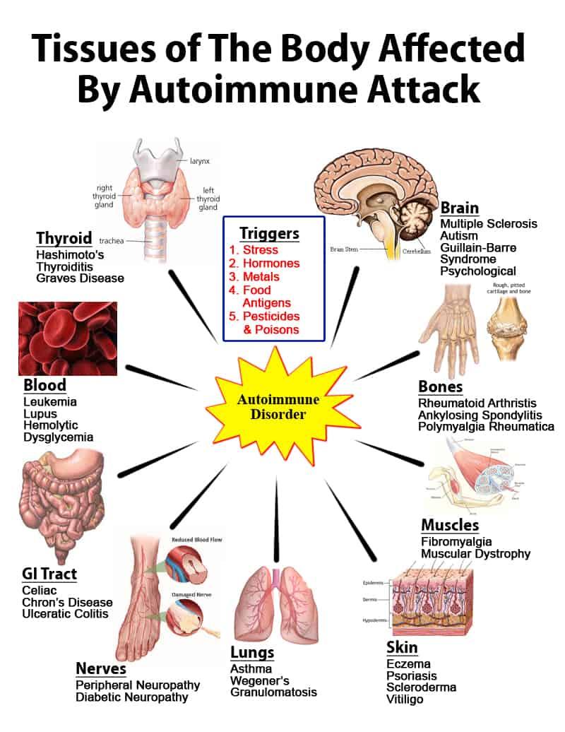 Auto Immune System NAET Dubai