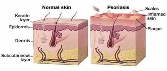 best psoriasis treatment in dubai a lábak bőrén vörös foltok viszketnek