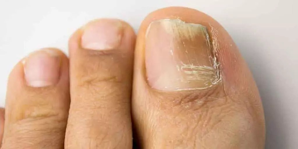 Candida Infection in Nail