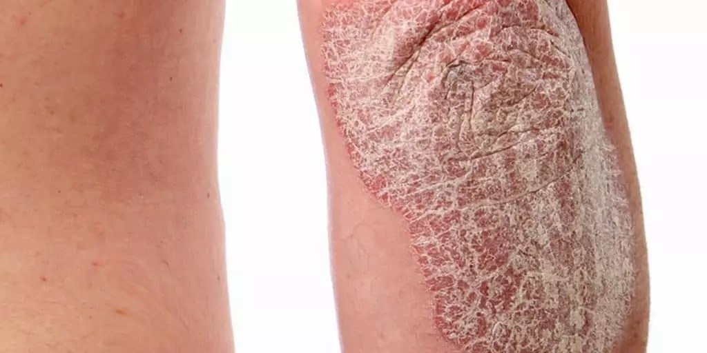 Elbow affected by Psoriasis