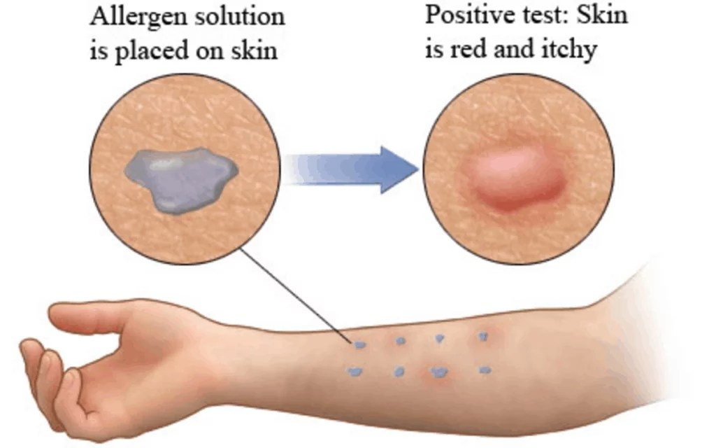 Skin allergy test