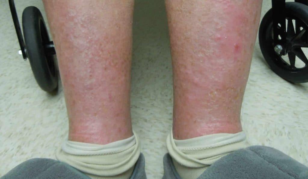 Statis Dermatitis