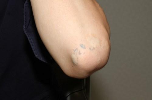 レーザー施術前の肘の様子