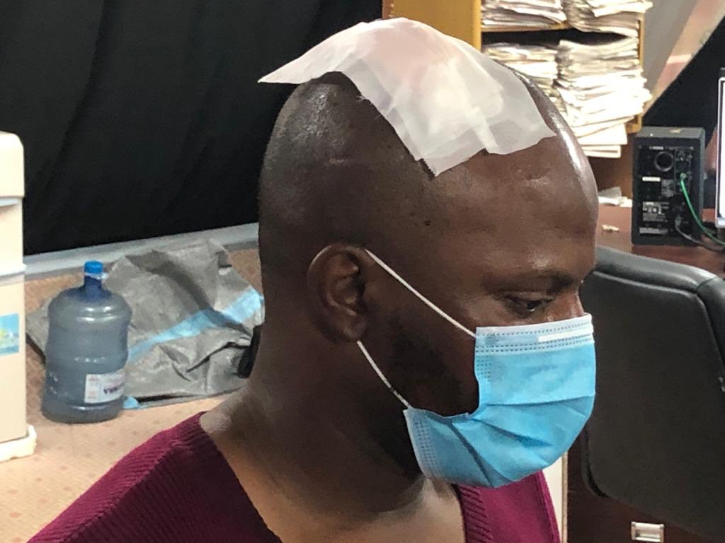 Police Break The Head Of Arise TV Cameraman, Hours After SARS Ending (Pics, Video)