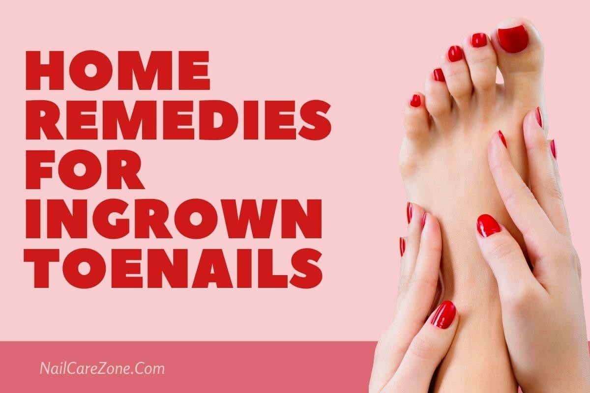 Home Remedies For Ingrown Toenails