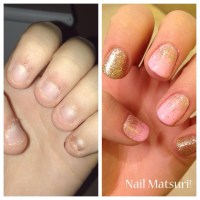Nail biter, before and after!
