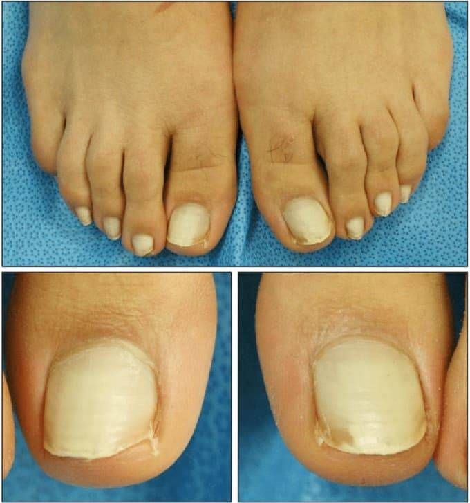 how to make toenails white