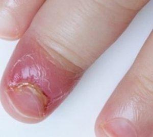 التهاب انگشت کودک