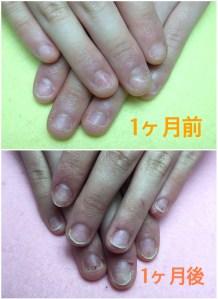深爪矯正中の自爪1ヶ月前-1ヶ月後