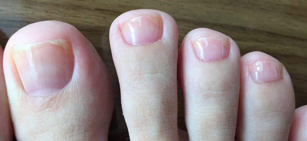 フットケアで美爪育成、片足拡大