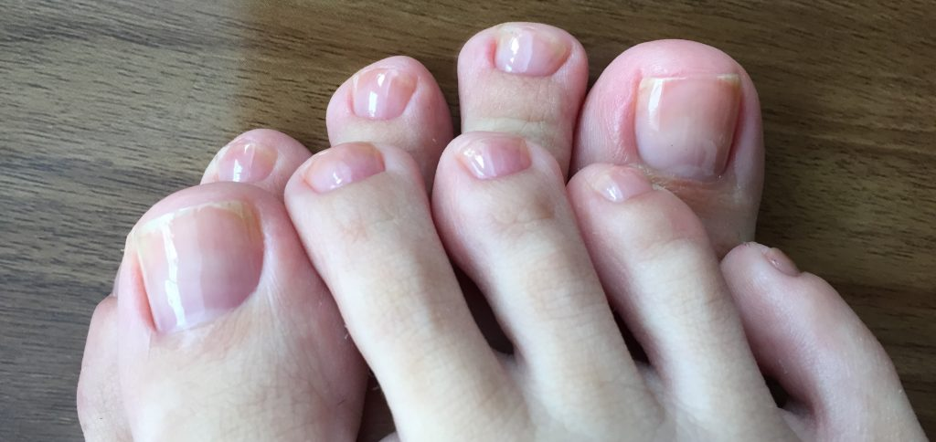 フットケアで足爪を美爪育成