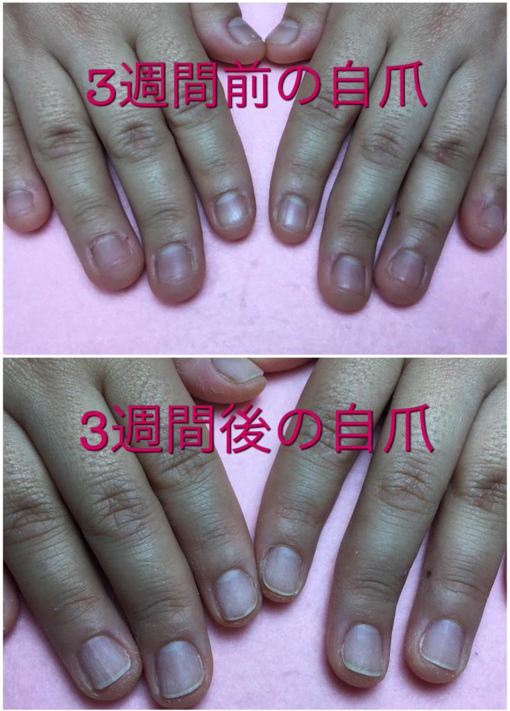 深爪矯正中の3週間前と3週間後の重視成長