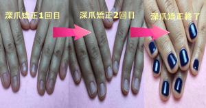 深爪矯正の過程で自爪が伸びる様子