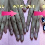 深爪は本当に治るの?深爪矯正のその後、ネイルケアとジェルネイルでネイルを楽しむ事ができます!