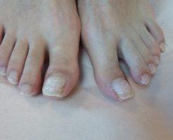 傷んだ足の爪