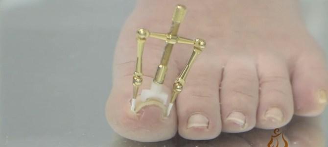 「巻き爪」が痛みも無く、わずか30分で治る!「巻き爪ロボ」が凄い!