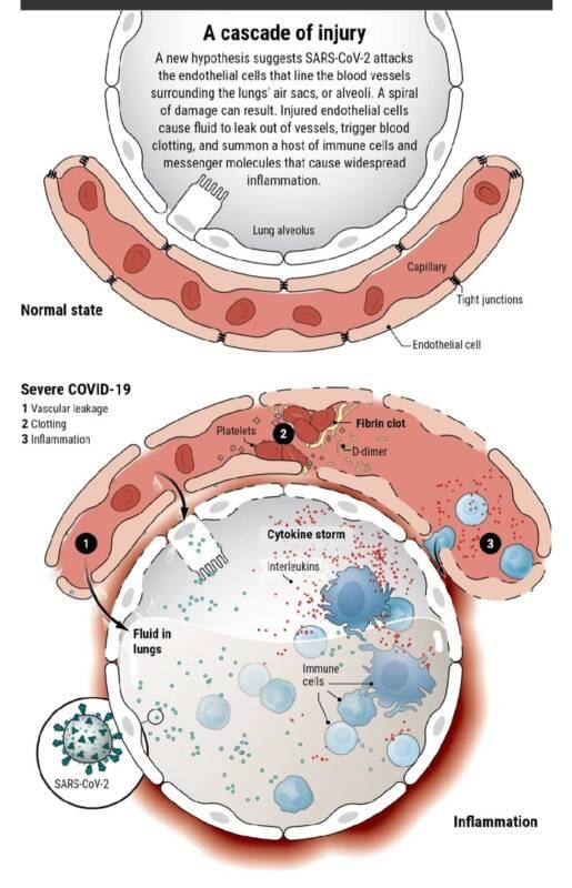 Covid-19 может оказаться сосудистым, а не респираторным заболеванием