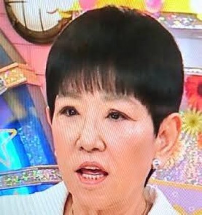 宮根誠司の顔変や左目が変は整形!?眼瞼下垂症の手術が判明