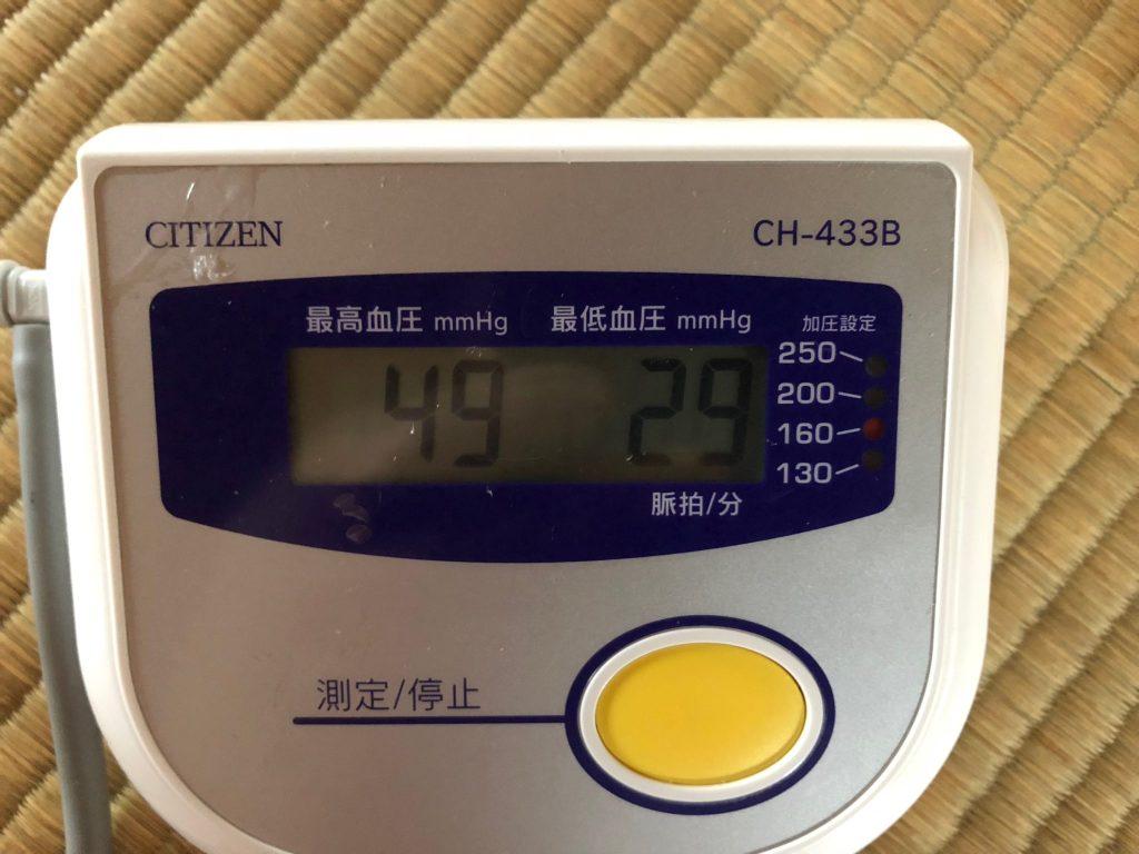 ちょっと信じられないほどの低血圧