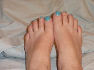 green toenails 1