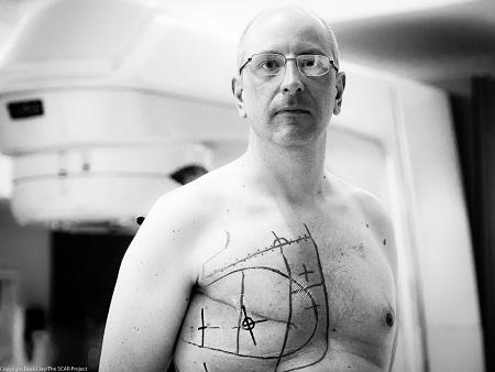 Cancer Changes Everything, A Guest Post by Oliver Bolger #malebreastcancer
