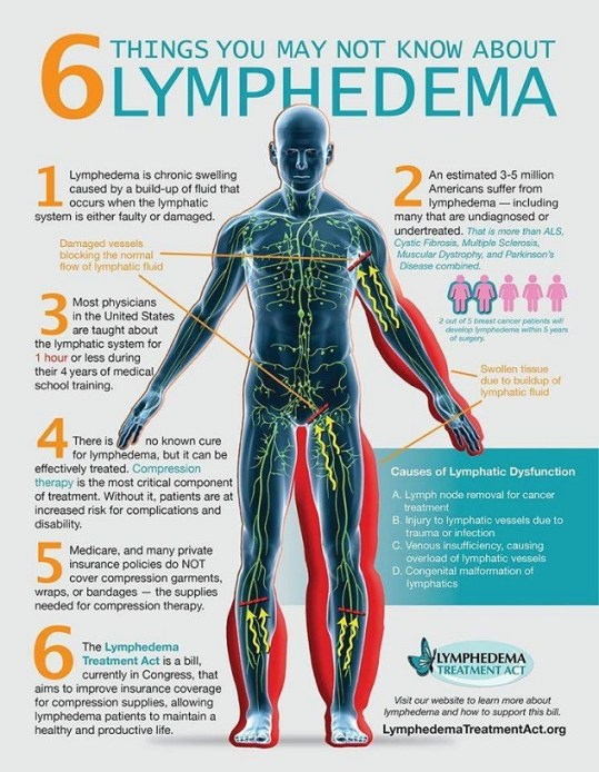 6 things you may not know about lymphedema