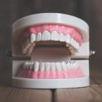 口内炎の原因と種類!できる場所別の対処法!