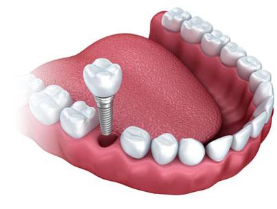 Full-Service Denture Clinic | Napanee Dentistry