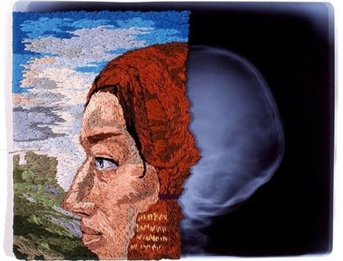 Американский художник создает необычные картины из рентгеновских снимков и вышивки (ФОТО)