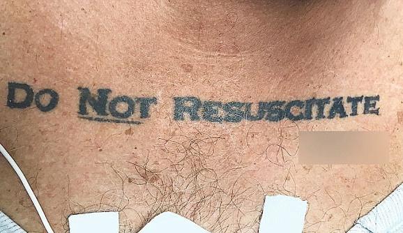 Врачи не стали реанимировать 70-летнего пациента из-за татуировки