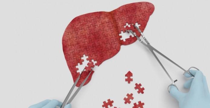 Гепатит С: как распознать «ласкового убийцу»?