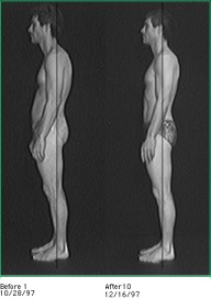 Rolfing Impact on Poor Posture - Madison WI