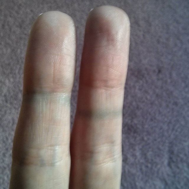a photo of laurel green's fingers stained by cheap rings