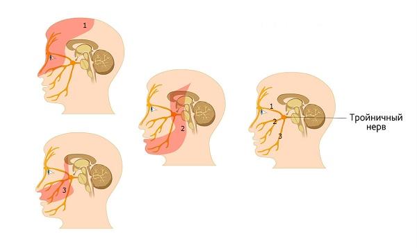 Как лечить застуженный тройничный нерв – обзор препаратов