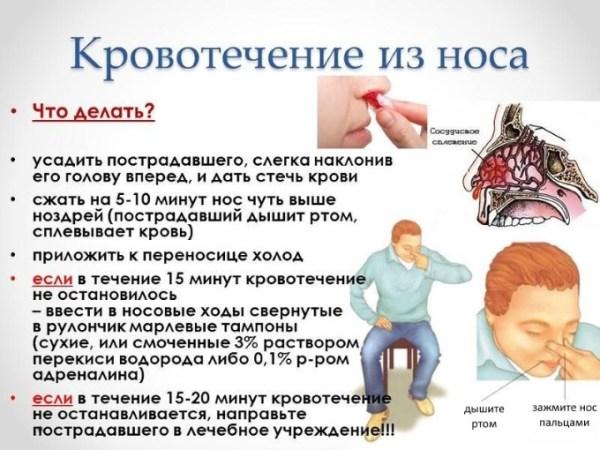 Как остановить кровотечение из носа