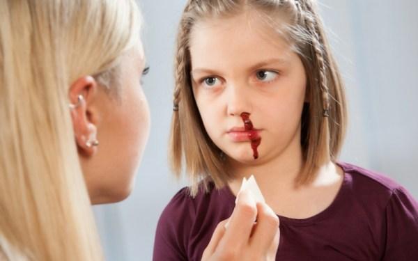 Опасность кровотечений определяет врач