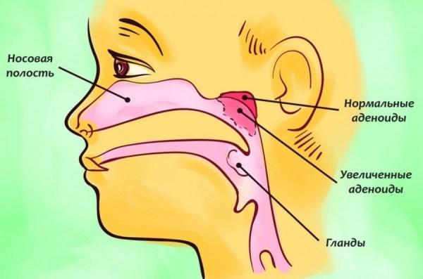 Аденоиды - причина заложенности носа