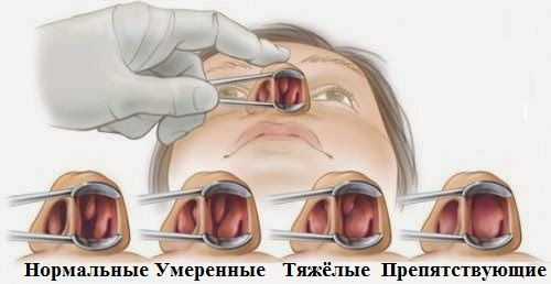 Виды полипов в носовых пазухах