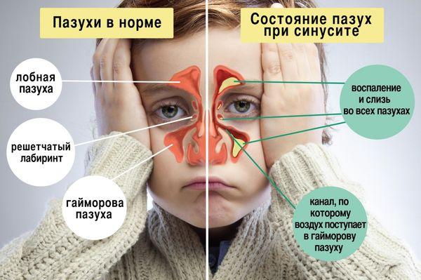 Синусит и гайморит