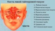 Способы лечения кисты в гайморовой пазухе