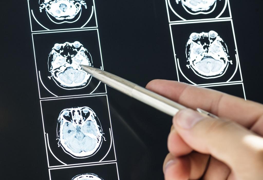 closeup-of-brain