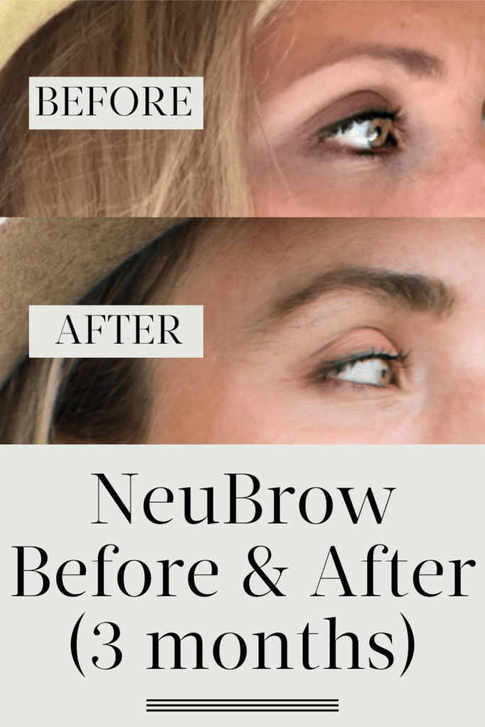 Rogaine For Eyebrows Before And After : rogaine, eyebrows, before, after, Eyebrow, Growth, Serums, Based, Customer, Reviews