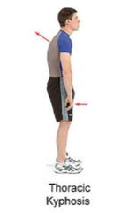 Flexed posture