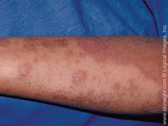 Esta imagen muestra una amplia dermatitis atópica (eczema), tenga en ...