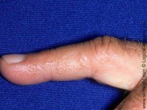 Dyshidrotic Eczema Symptoms Causes Treatments Pictures