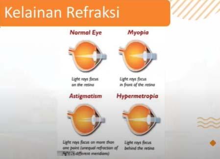 kelainan refraksi butuh kacamata