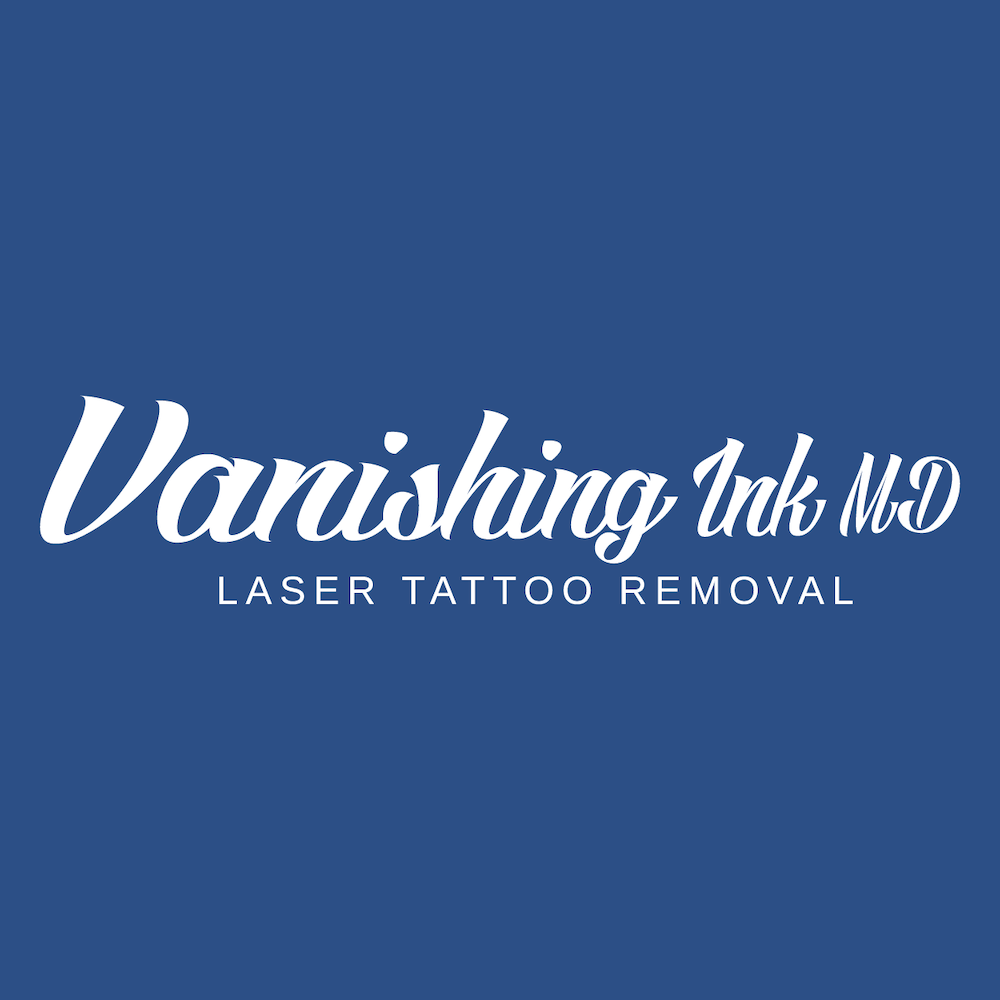 vanishing ink conroe texas tattoo removal national tattoo removal day