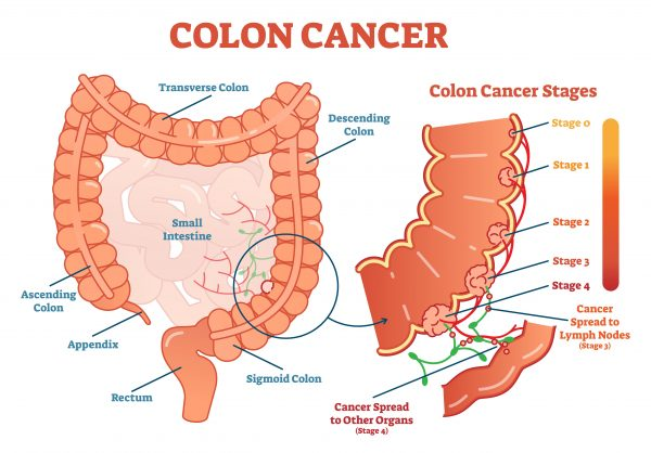 9 Signs That May Indicate Colon Cancer Does Your Belly Feel Bloated All The Time