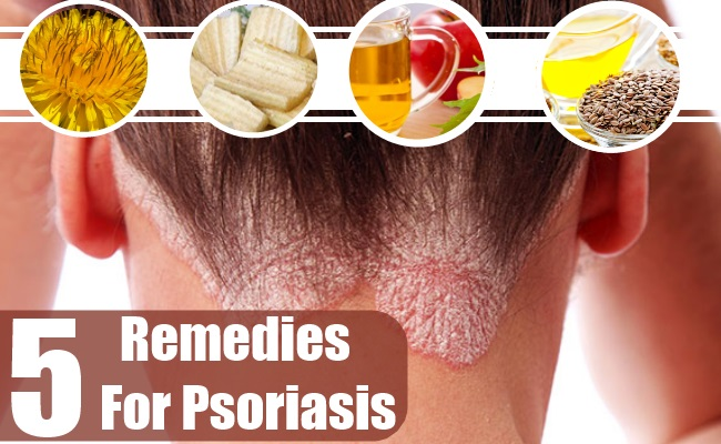 Home Remedies For Psoriasis
